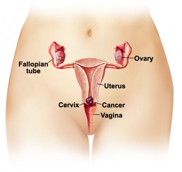 Statistics and diagrams cervical cancer think blue picture ccuart Choice Image